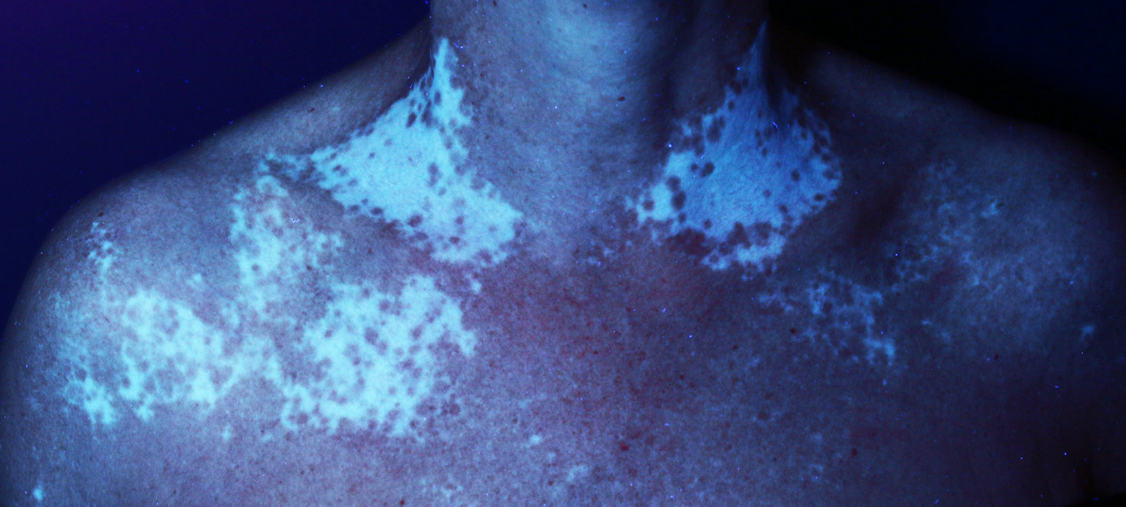 Vitiligo non segmentaire