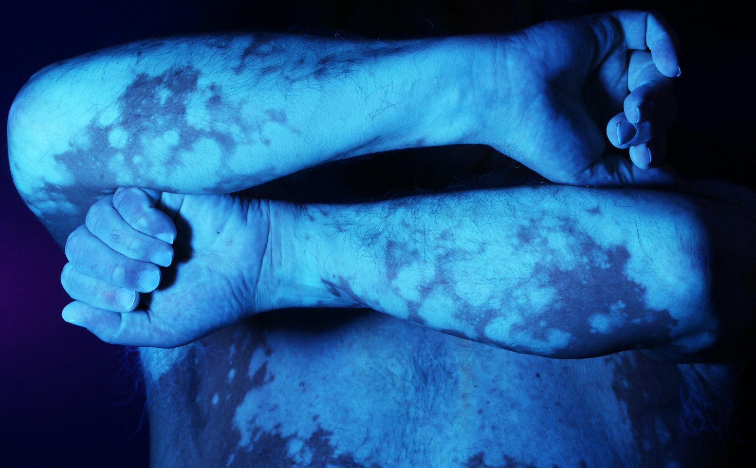 Vitiligo universel