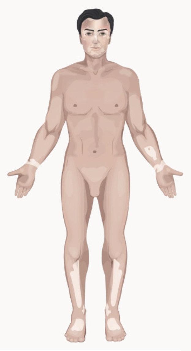 Vitiligo acro-facial
