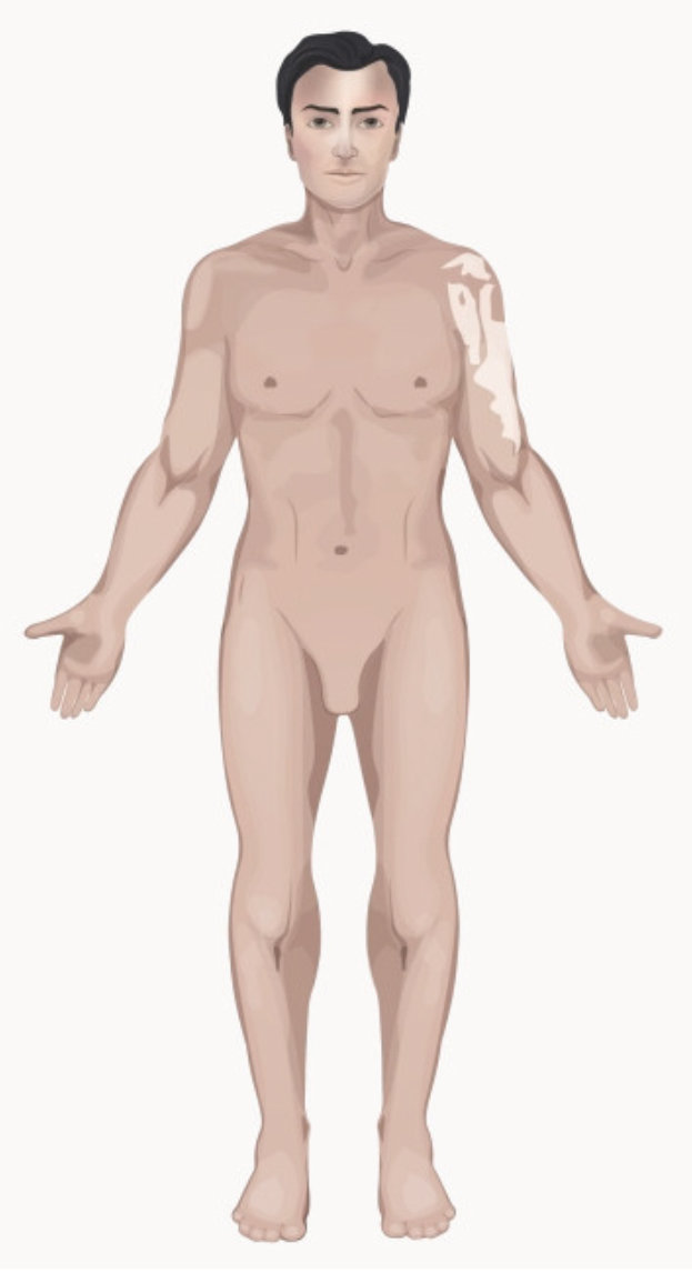 Vitiligo segmentaire